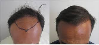 Advantages to the hair restoration procedure
