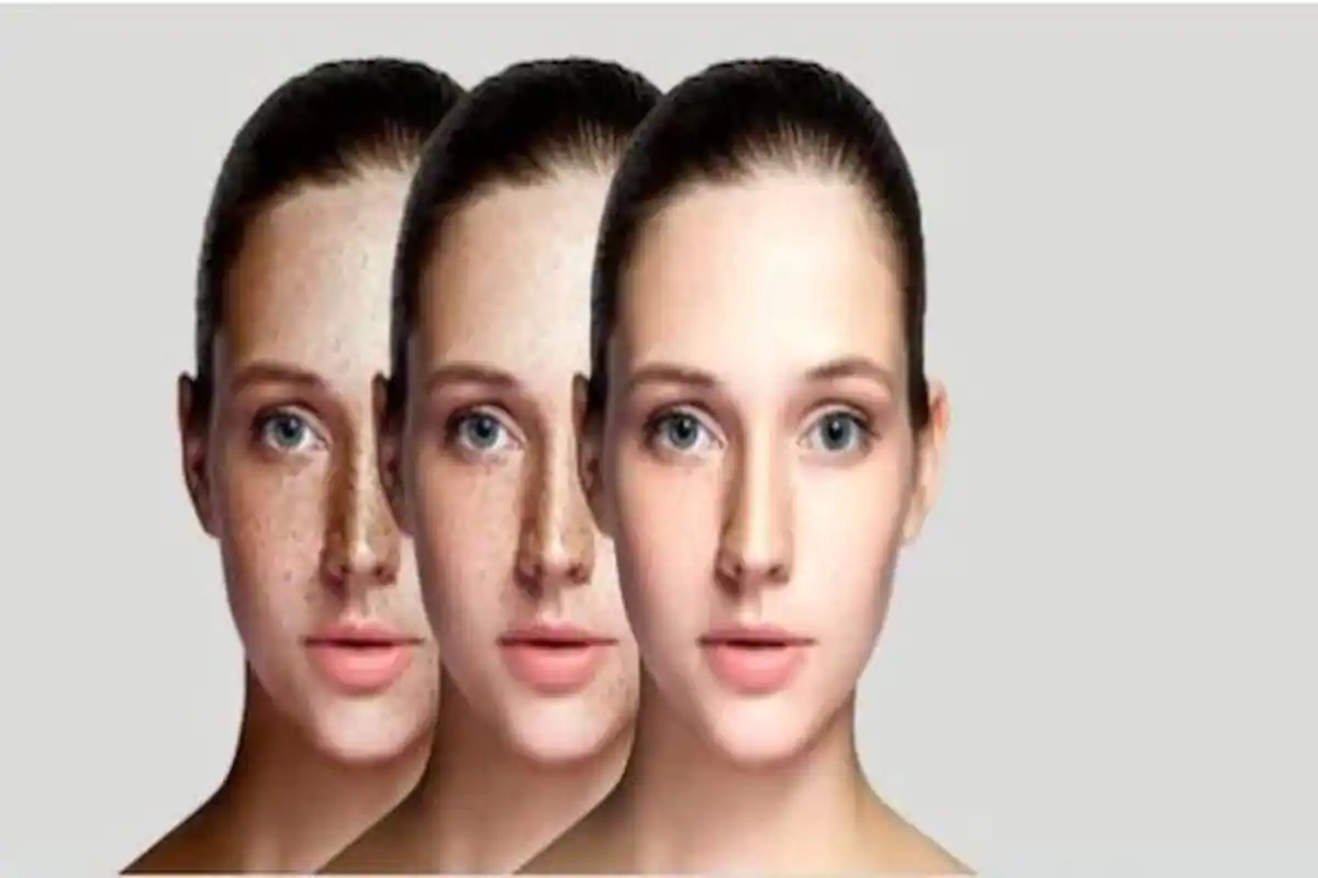Dive into what causes hyperpigmentation
